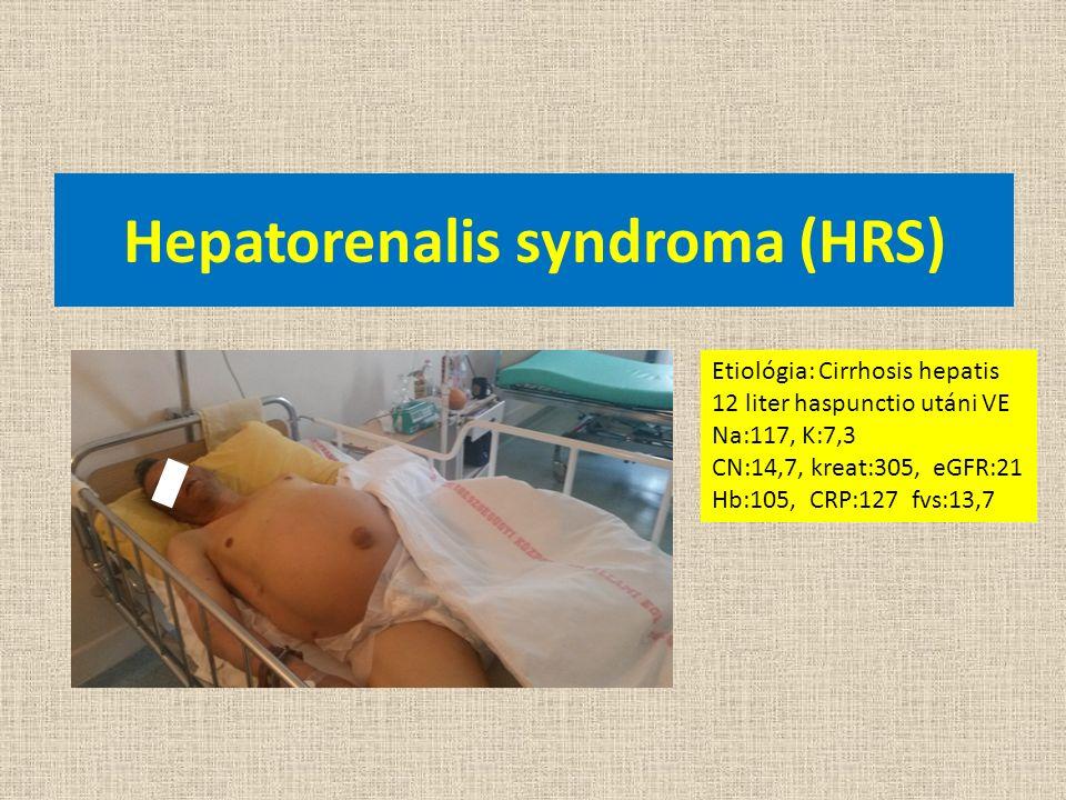 Hepatorenalis syndroma (HRS) Etiológia: Cirrhosis hepatis 12 liter haspunctio utáni VE Na:117, K:7,3 CN:14,7, kreat:305, eGFR:21 Hb:105, CRP:127 fvs:1