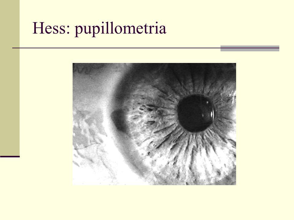 Hess: pupillometria