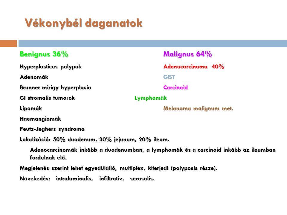 Vékonybél daganatok Benignus 36%Malignus 64% Hyperplasticus polypokAdenocarcinoma 40% AdenomákGIST Brunner mirigy hyperplasia Carcinoid GI stromalis tumorokLymphomák LipomákMelanoma malignum met.