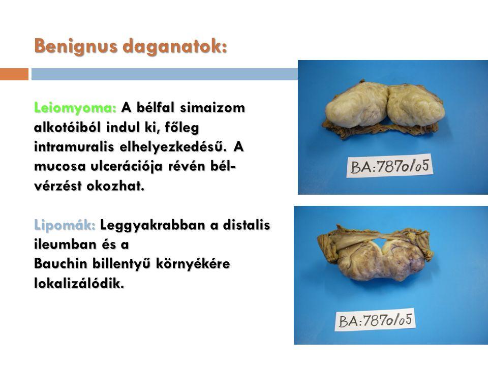 Benignus daganatok: Leiomyoma: A bélfal simaizom alkotóiból indul ki, főleg intramuralis elhelyezkedésű.