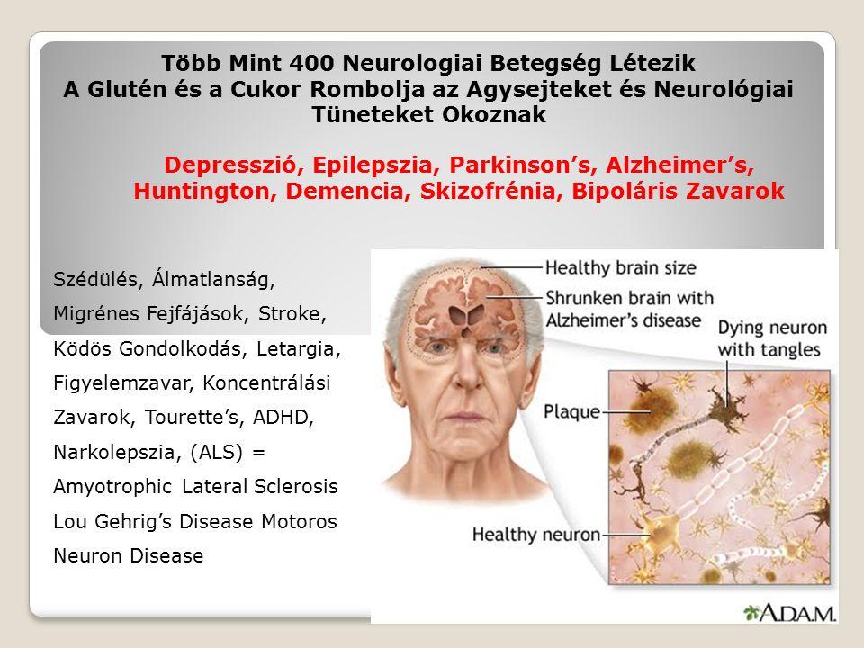 Több Mint 400 Neurologiai Betegség Létezik A Glutén és a Cukor Rombolja az Agysejteket és Neurológiai Tüneteket Okoznak Szédülés, Álmatlanság, Migrénes Fejfájások, Stroke, Ködös Gondolkodás, Letargia, Figyelemzavar, Koncentrálási Zavarok, Tourette's, ADHD, Narkolepszia, (ALS) = Amyotrophic Lateral Sclerosis Lou Gehrig's Disease Motoros Neuron Disease Depresszió, Epilepszia, Parkinson's, Alzheimer's, Huntington, Demencia, Skizofrénia, Bipoláris Zavarok