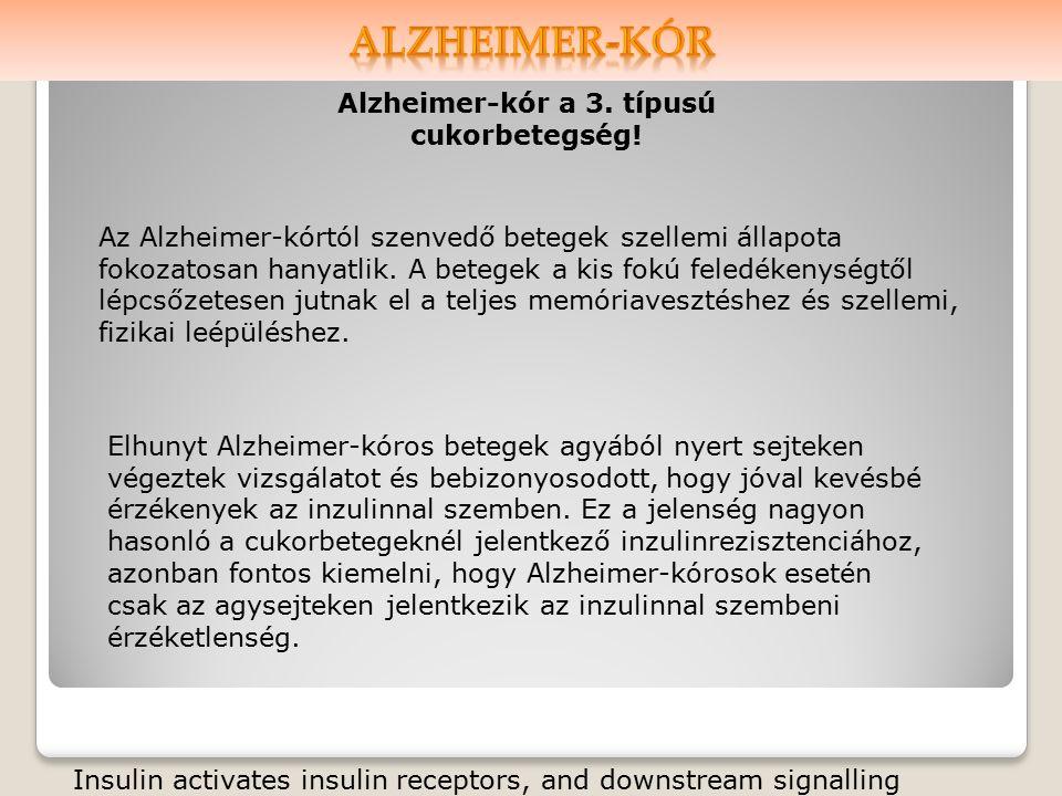 Alzheimer-kór a 3. típusú cukorbetegség.