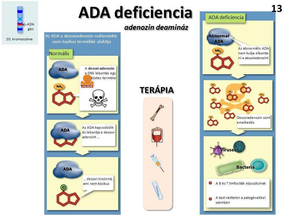 ADA deficiencia adenozin deamináz ADA deficiencia adenozin deamináz Az ADA a dezoxiadenozin nukleozidot nem-toxikus termékké alakítja Normális ADA deficiencia Az abnormális ADA nem tudja elbonta- ni a dezoxiadenozint Dezoxiadenozin szint emelkedés A B és T limfociták elpusztulnak A test védtelen a patogénekkel szemben A dezoxi-adenozin a DNS lebontás egy köztes terméke Az ADA kapcsolódik és lebontja a dezoxi- adenzint … … dezoxi-inozinná, ami nem toxikus 20.