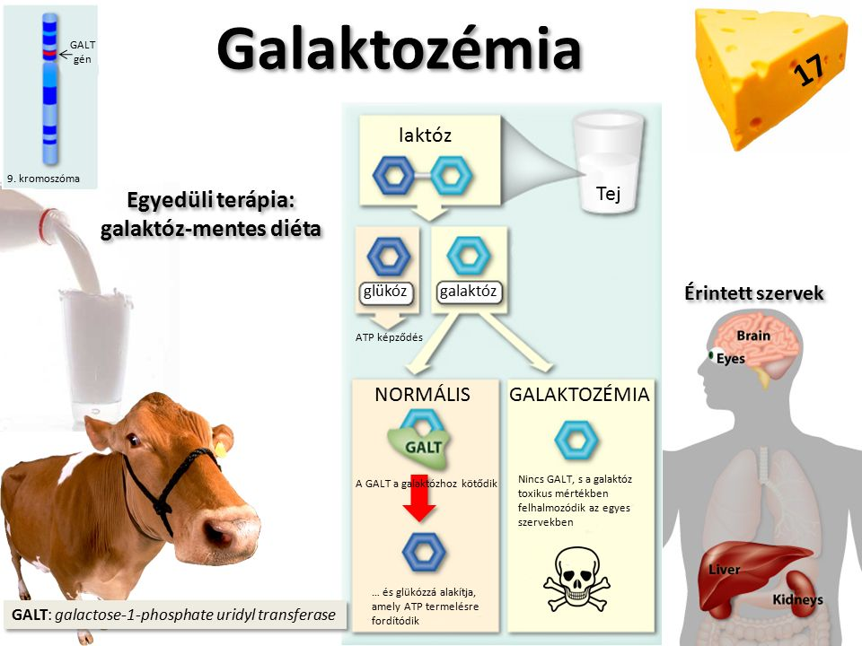 Galaktozémia 9.