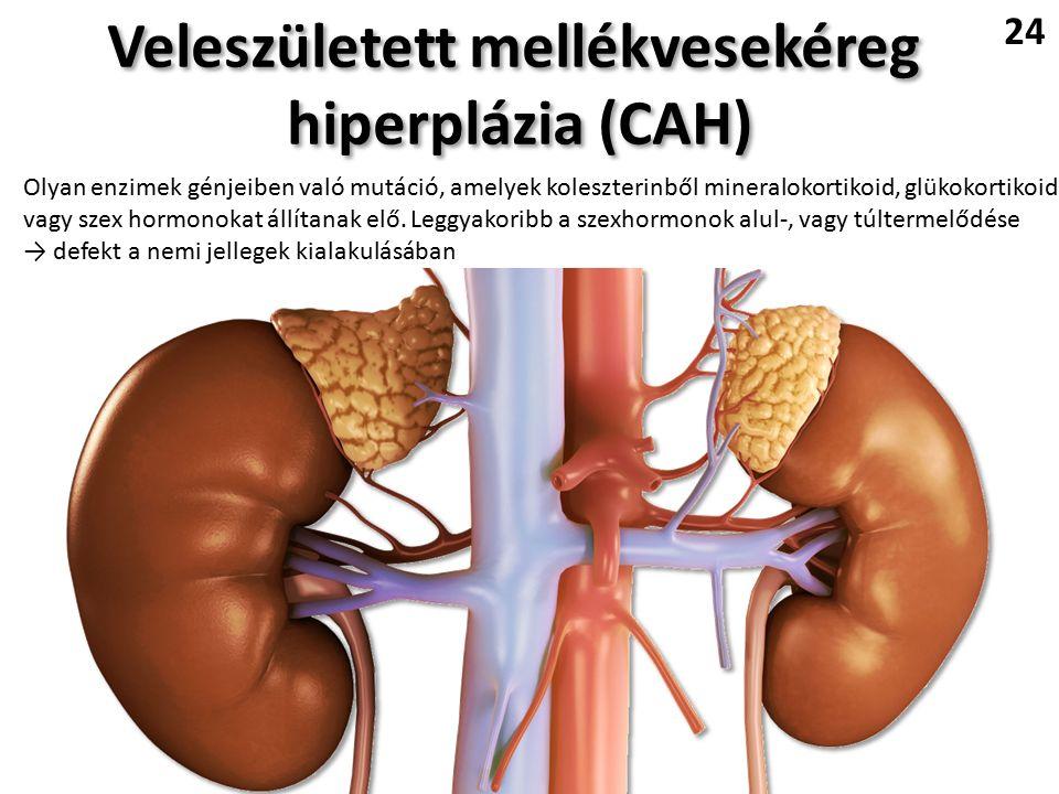 Veleszületett mellékvesekéreg hiperplázia (CAH) Veleszületett mellékvesekéreg hiperplázia (CAH) 24 Olyan enzimek génjeiben való mutáció, amelyek koleszterinből mineralokortikoid, glükokortikoid, vagy szex hormonokat állítanak elő.