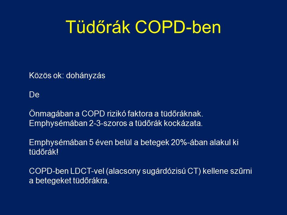 Tüdőrák COPD-ben Közös ok: dohányzás De Önmagában a COPD rizikó faktora a tüdőráknak. Emphysémában 2-3-szoros a tüdőrák kockázata. Emphysémában 5 éven