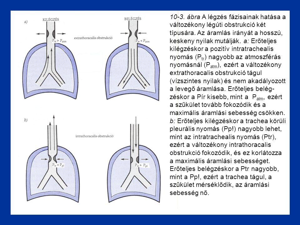 10-3. ábra A légzés fázisainak hatása a változékony légúti obstrukció két típusára.