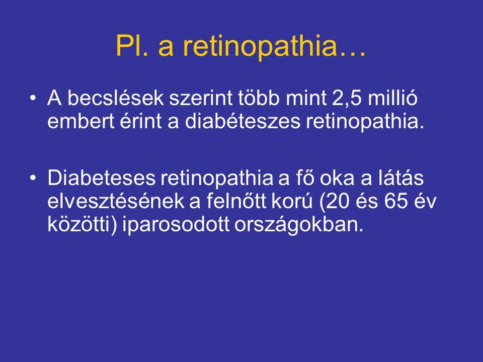 Pl. a retinopathia… A becslések szerint több mint 2,5 millió embert érint a diabéteszes retinopathia. Diabeteses retinopathia a fő oka a látás elveszt