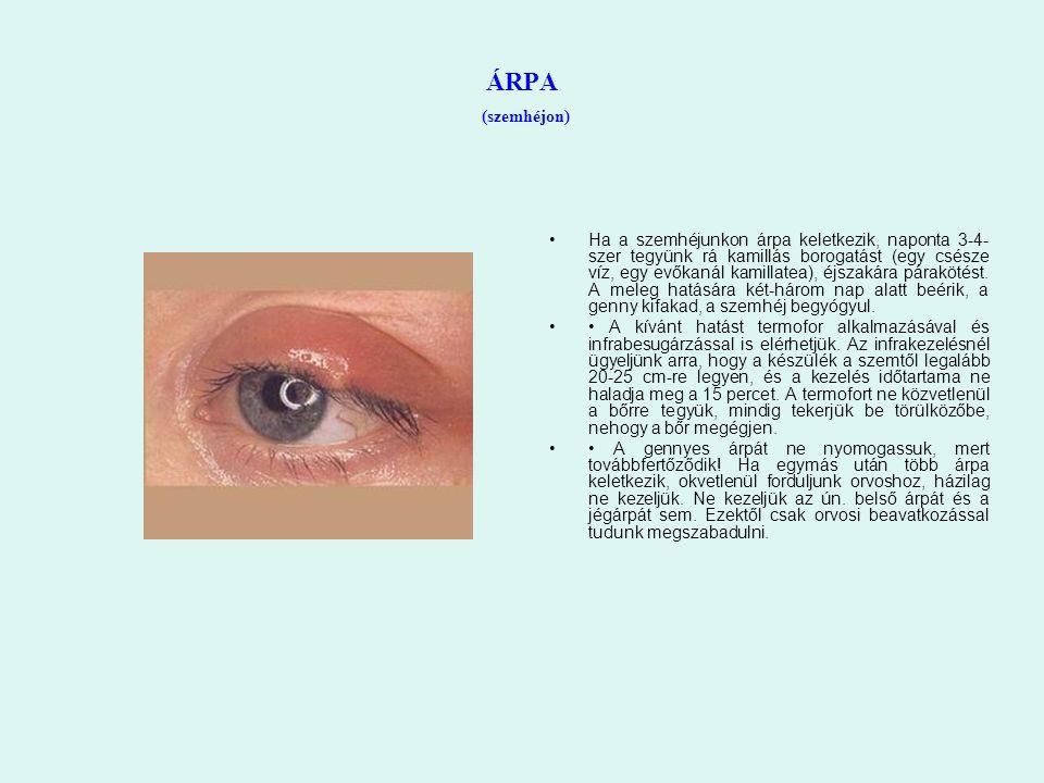 ÁRPA (szemhéjon) Ha a szemhéjunkon árpa keletkezik, naponta 3-4- szer tegyünk rá kamillás borogatást (egy csésze víz, egy evőkanál kamillatea), éjsza