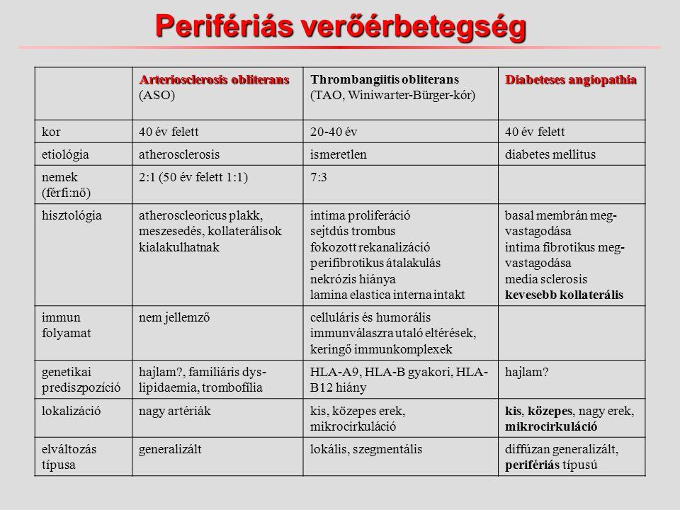 Perifériás verőérbetegség Arteriosclerosis obliterans Arteriosclerosis obliterans (ASO) Thrombangiitis obliterans (TAO, Winiwarter-Bürger-kór) Diabeteses angiopathia kor40 év felett20-40 év40 év felett etiológiaatherosclerosisismeretlendiabetes mellitus nemek (férfi:nő) 2:1 (50 év felett 1:1)7:3 hisztológiaatheroscleoricus plakk, meszesedés, kollaterálisok kialakulhatnak intima proliferáció sejtdús trombus fokozott rekanalizáció perifibrotikus átalakulás nekrózis hiánya lamina elastica interna intakt basal membrán meg- vastagodása intima fibrotikus meg- vastagodása media sclerosis kevesebb kollaterális immun folyamat nem jellemzőcelluláris és humorális immunválaszra utaló eltérések, keringő immunkomplexek genetikai prediszpozíció hajlam , familiáris dys- lipidaemia, trombofília HLA-A9, HLA-B gyakori, HLA- B12 hiány hajlam.