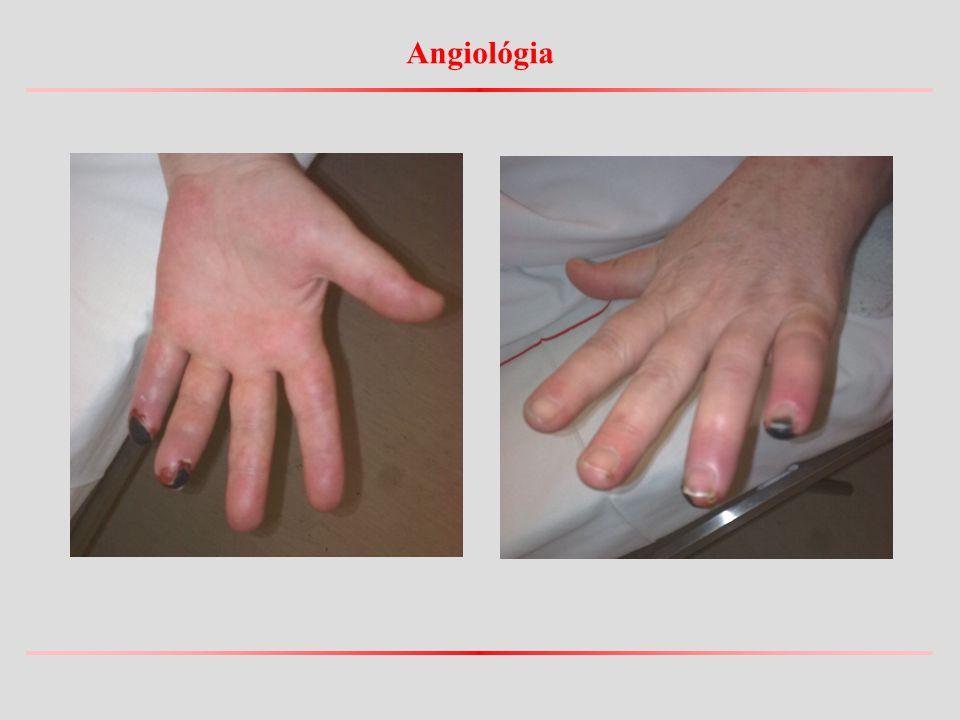 Angiológia