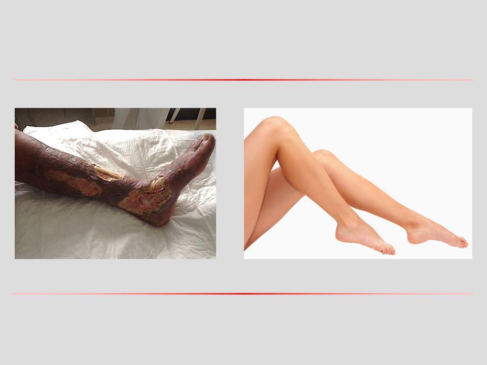 Kritikus végtag ischaemia Krónikus kritikus végtag ischaemia Krónikus kritikus végtag ischaemia definíciója: -nyugalmi fájdalom több mint két hete (diabetesnél gyakran nincs!), -ischaemiás fekély vagy gangraena, -bokánál mért szisztolés vérnyomás < 50 Hgmm (és nyugalmi fájdalom) vagy < 70 Hgmm (és fekély/gangraena) vagy ujjon mért szisztolés vérnyomás < 30 Hgmm, -transcutan partialis szöveti oxigéntenzió < 30 Hgmm.