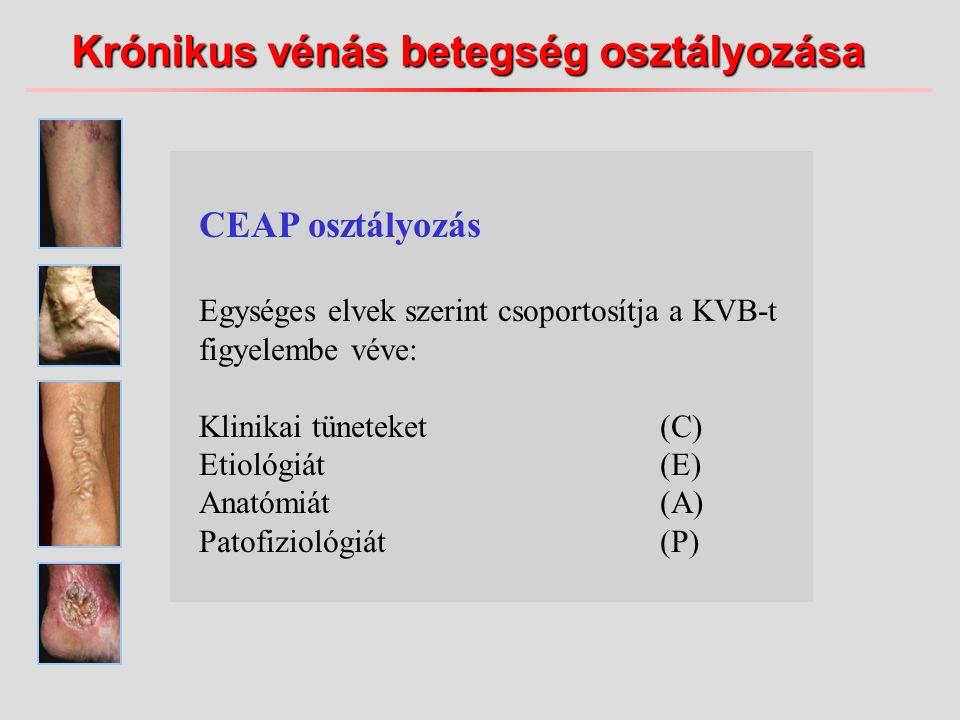 Krónikus vénás betegség osztályozása CEAP osztályozás Egységes elvek szerint csoportosítja a KVB-t figyelembe véve: Klinikai tüneteket(C) Etiológiát(E) Anatómiát(A) Patofiziológiát(P)
