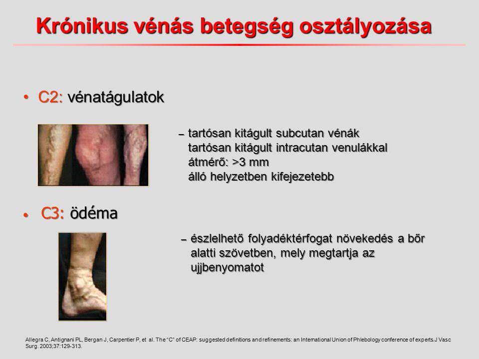 C3: ödéma – tartósan kitágult subcutan vénák tartósan kitágult intracutan venulákkal átmérő: >3 mm álló helyzetben kifejezetebb Allegra C, Antignani P