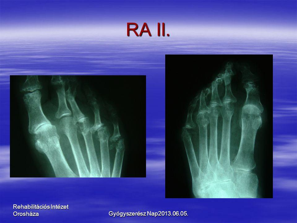 Rehabilitációs Intézet Orosháza RA II. Gyógyszerész Nap2013.06.05.