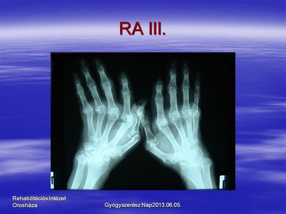 Rehabilitációs Intézet Orosháza RA III. Gyógyszerész Nap2013.06.05.