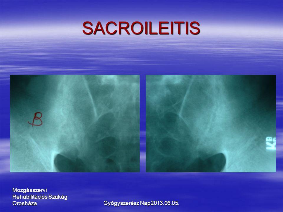 Mozgásszervi Rehabilitációs Szakág Orosháza SACROILEITIS Gyógyszerész Nap2013.06.05.