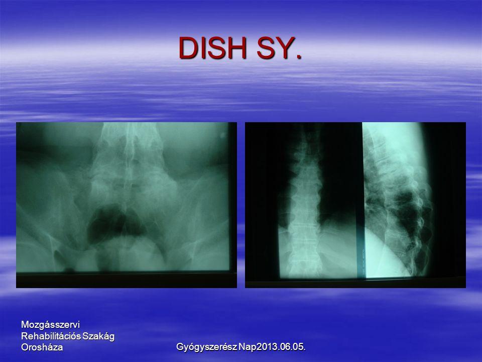 Mozgásszervi Rehabilitációs Szakág Orosháza DISH SY. Gyógyszerész Nap2013.06.05.