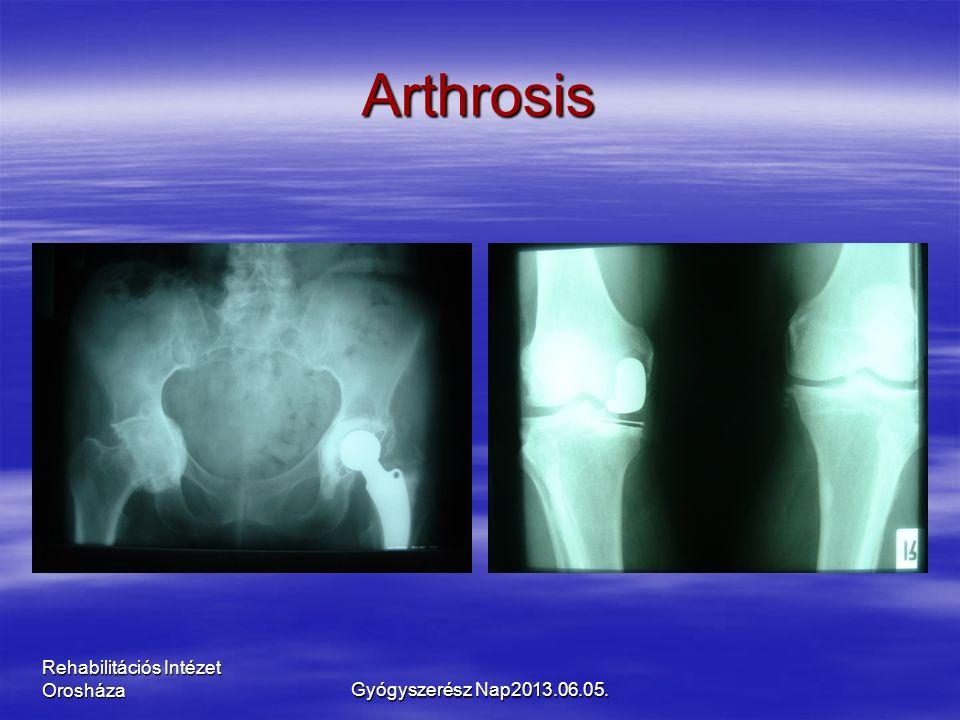 Rehabilitációs Intézet Orosháza Arthrosis Gyógyszerész Nap2013.06.05.