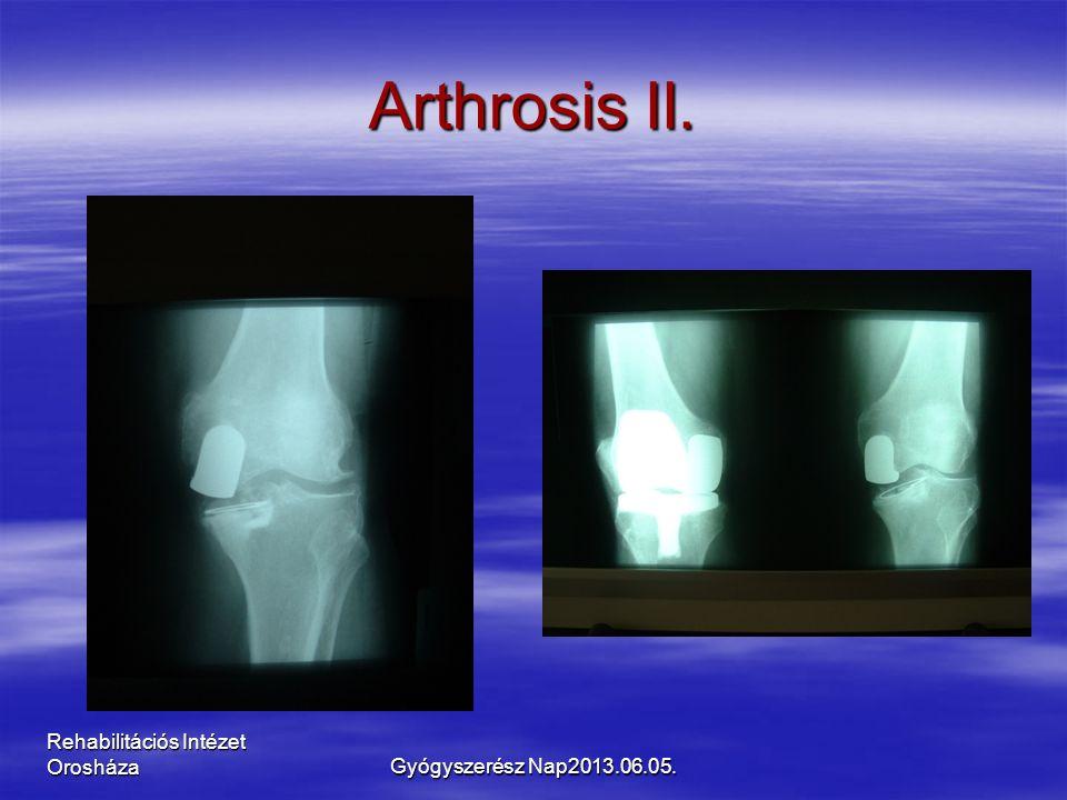 Rehabilitációs Intézet Orosháza Arthrosis II. Gyógyszerész Nap2013.06.05.