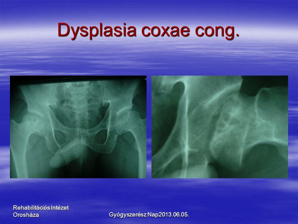 Rehabilitációs Intézet Orosháza Dysplasia coxae cong. Gyógyszerész Nap2013.06.05.
