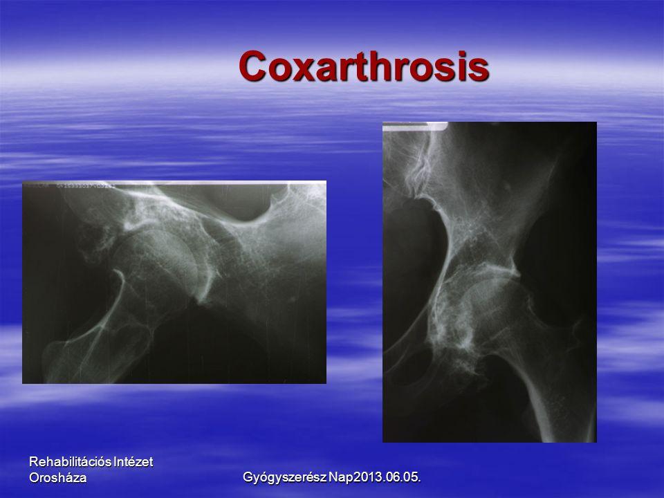 Rehabilitációs Intézet Orosháza Coxarthrosis Gyógyszerész Nap2013.06.05.