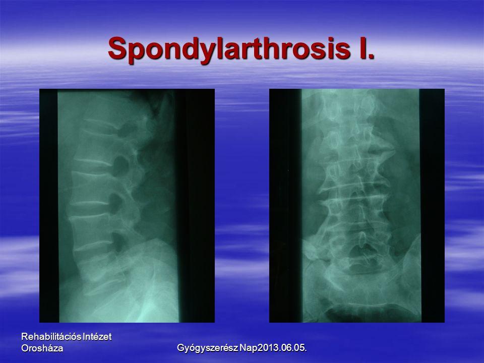 Rehabilitációs Intézet Orosháza Spondylarthrosis I. Gyógyszerész Nap2013.06.05.