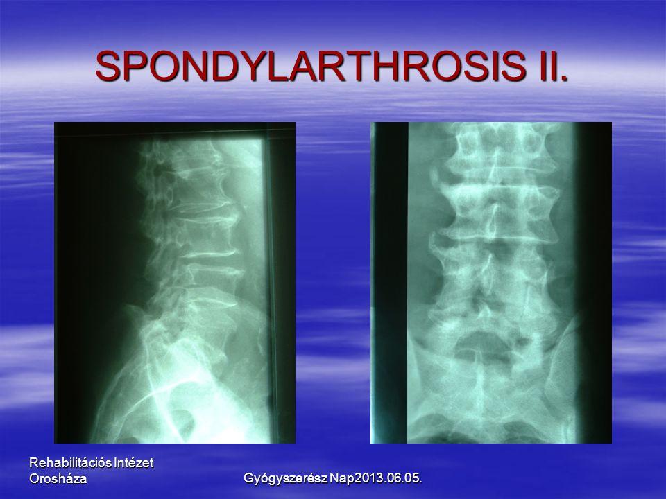 Rehabilitációs Intézet Orosháza SPONDYLARTHROSIS II. Gyógyszerész Nap2013.06.05.