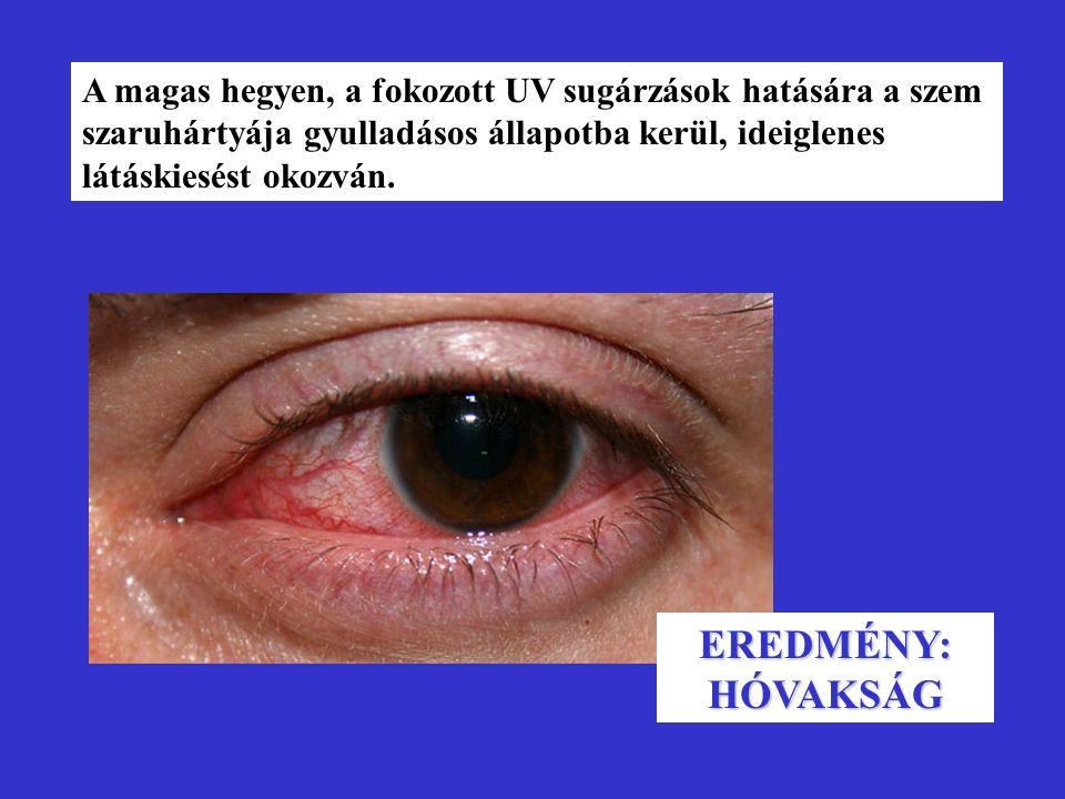 A magas hegyen, a fokozott UV sugárzások hatására a szem szaruhártyája gyulladásos állapotba kerül, ideiglenes látáskiesést okozván. EREDMÉNY: HÓVAKSÁ