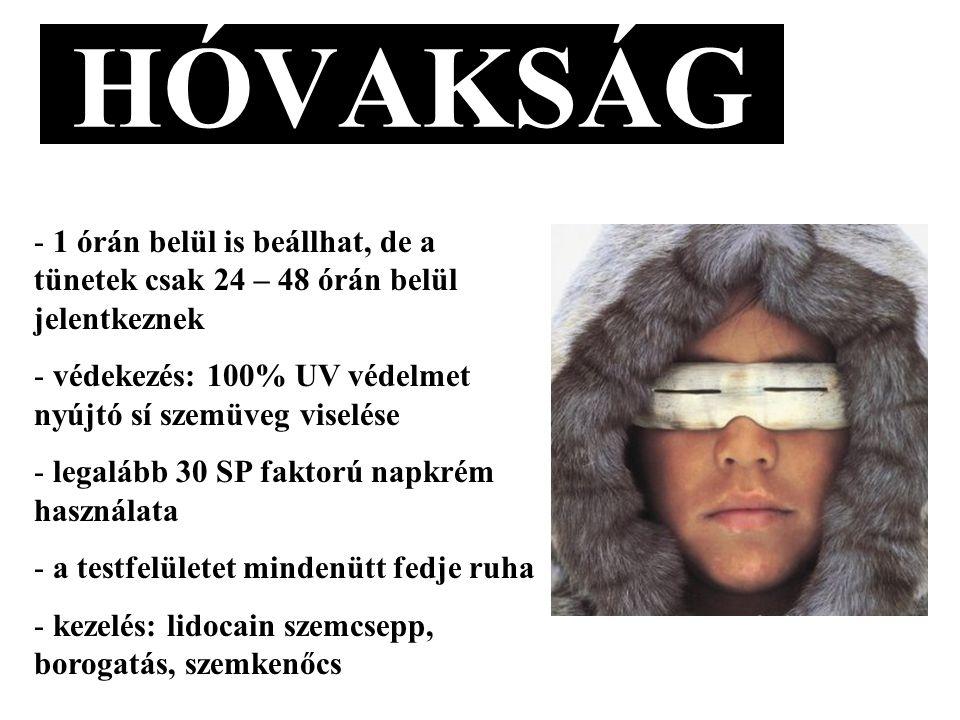 HÓVAKSÁG - 1 órán belül is beállhat, de a tünetek csak 24 – 48 órán belül jelentkeznek - védekezés: 100% UV védelmet nyújtó sí szemüveg viselése - legalább 30 SP faktorú napkrém használata - a testfelületet mindenütt fedje ruha - kezelés: lidocain szemcsepp, borogatás, szemkenőcs