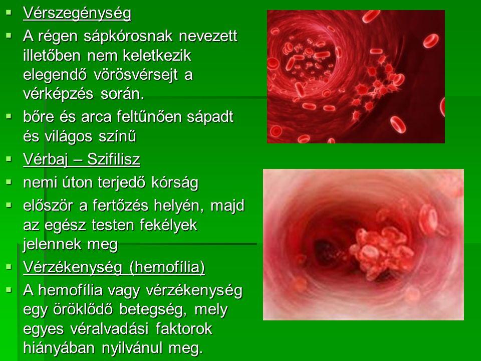  Vérszegénység  A régen sápkórosnak nevezett illetőben nem keletkezik elegendő vörösvérsejt a vérképzés során.  bőre és arca feltűnően sápadt és vi