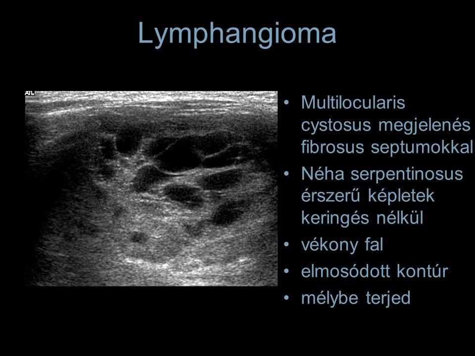 Lymphangioma Multilocularis cystosus megjelenés fibrosus septumokkal Néha serpentinosus érszerű képletek keringés nélkül vékony fal elmosódott kontúr