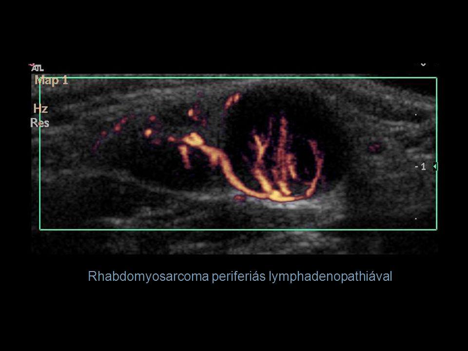Rhabdomyosarcoma periferiás lymphadenopathiával