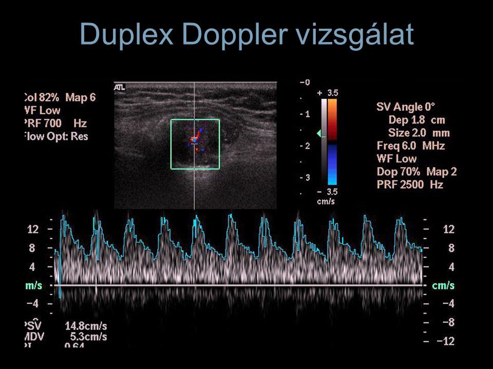 Duplex Doppler vizsgálat