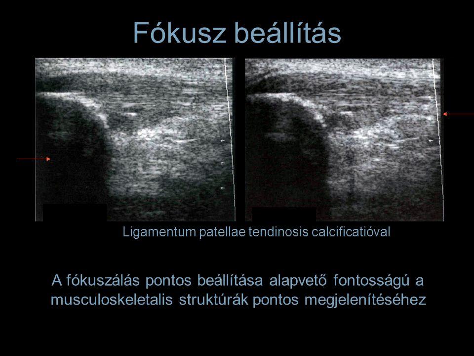 A fókuszálás pontos beállítása alapvető fontosságú a musculoskeletalis struktúrák pontos megjelenítéséhez Ligamentum patellae tendinosis calcificatióval Fókusz beállítás