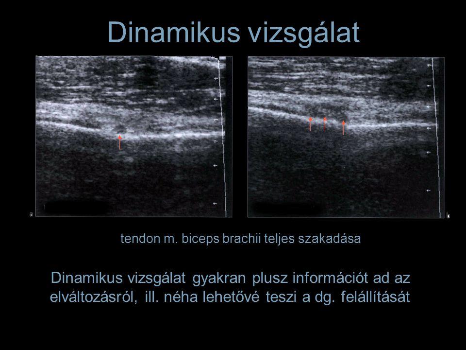 Dinamikus vizsgálat gyakran plusz információt ad az elváltozásról, ill. néha lehetővé teszi a dg. felállítását tendon m. biceps brachii teljes szakadá