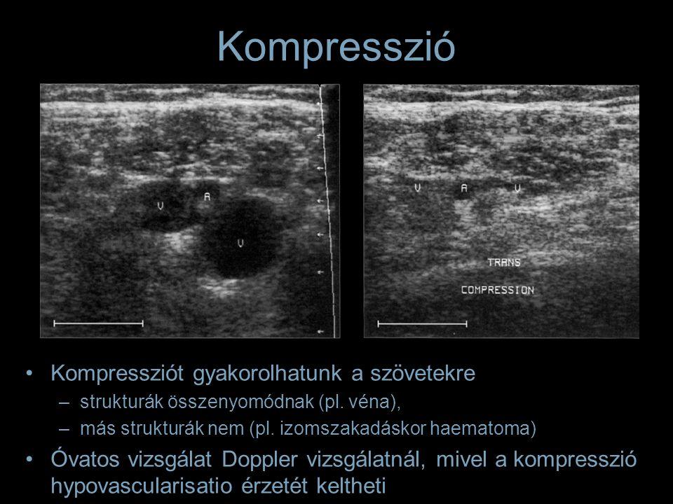 Kompressziót gyakorolhatunk a szövetekre –strukturák összenyomódnak (pl. véna), –más strukturák nem (pl. izomszakadáskor haematoma) Óvatos vizsgálat D