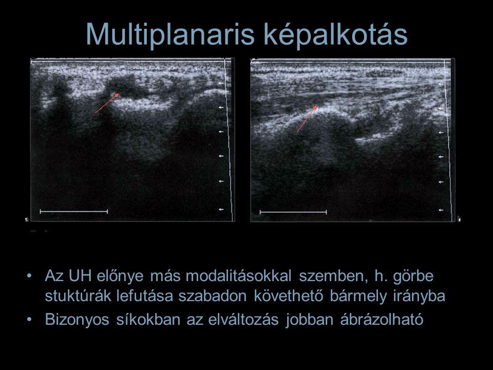 Az UH előnye más modalitásokkal szemben, h. görbe stuktúrák lefutása szabadon követhető bármely irányba Bizonyos síkokban az elváltozás jobban ábrázol