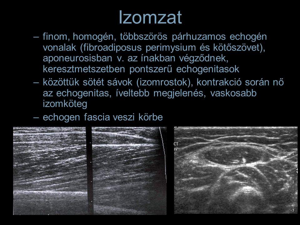 Izomzat –finom, homogén, többszörös párhuzamos echogén vonalak (fibroadiposus perimysium és kötőszövet), aponeurosisban v. az ínakban végződnek, keres