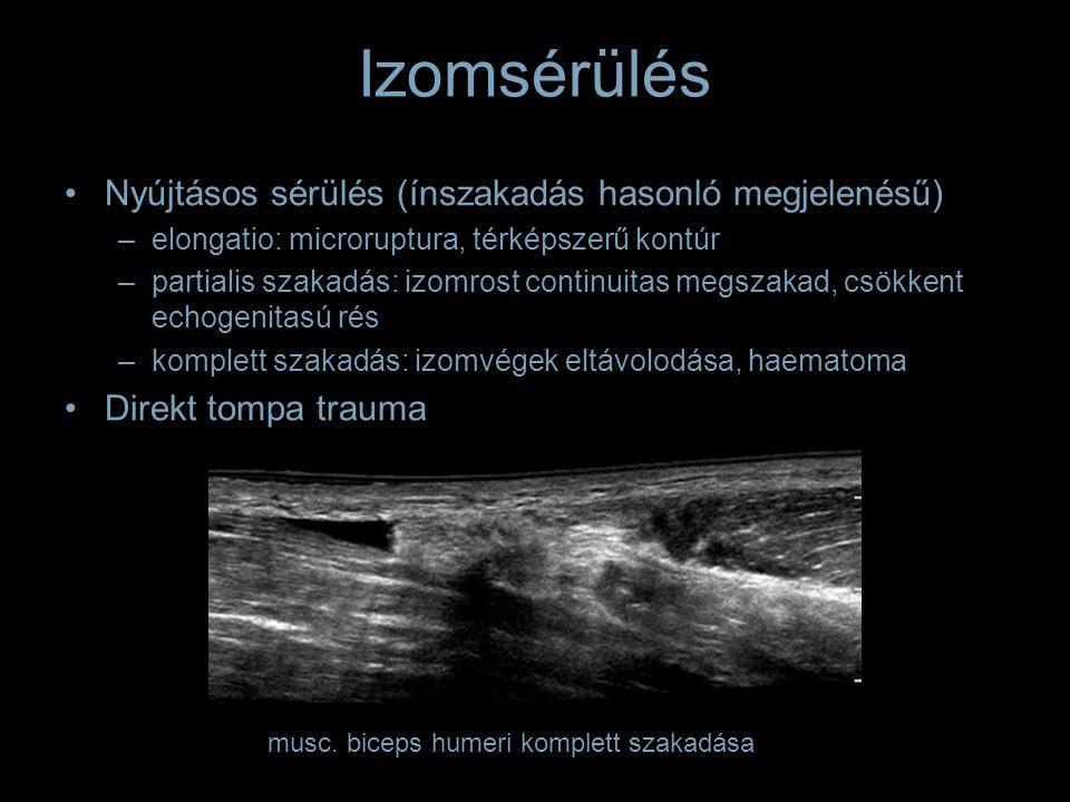 Izomsérülés Nyújtásos sérülés (ínszakadás hasonló megjelenésű) –elongatio: microruptura, térképszerű kontúr –partialis szakadás: izomrost continuitas