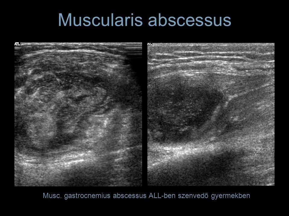 Muscularis abscessus Musc. gastrocnemius abscessus ALL-ben szenvedő gyermekben