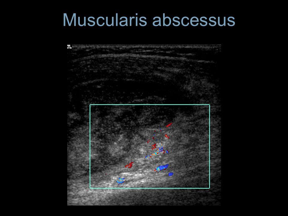 Muscularis abscessus