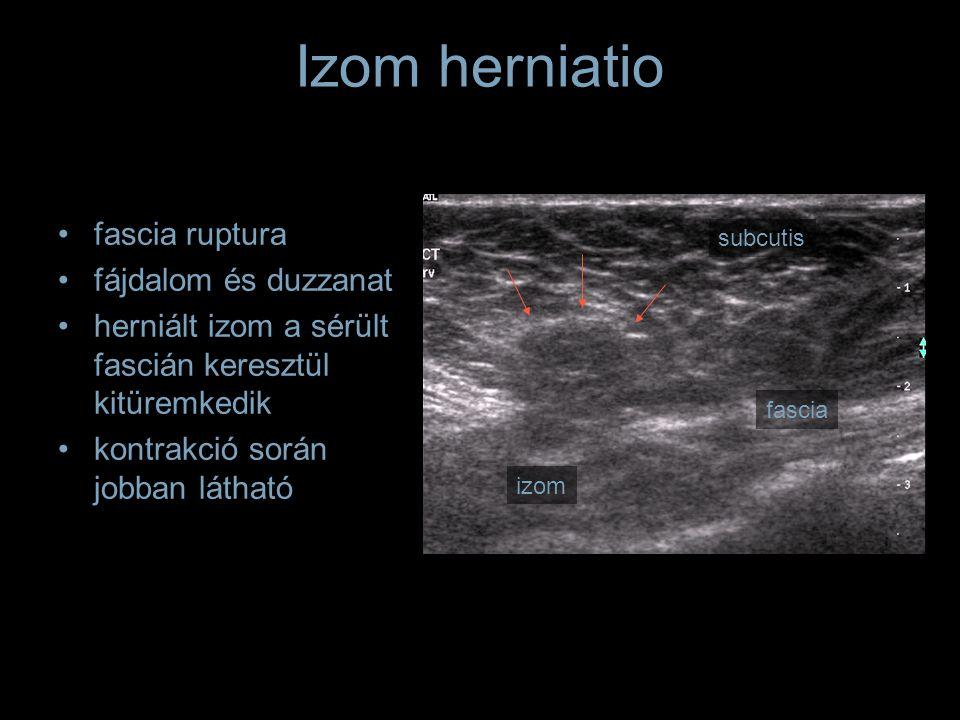 Izom herniatio fascia ruptura fájdalom és duzzanat herniált izom a sérült fascián keresztül kitüremkedik kontrakció során jobban látható subcutis fasc
