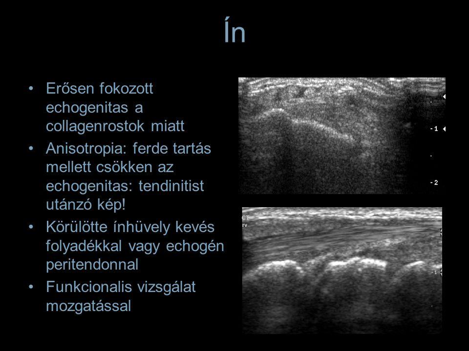 Ín Erősen fokozott echogenitas a collagenrostok miatt Anisotropia: ferde tartás mellett csökken az echogenitas: tendinitist utánzó kép! Körülötte ínhü