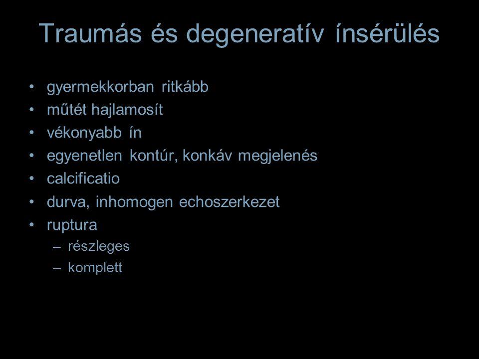 Traumás és degeneratív ínsérülés gyermekkorban ritkább műtét hajlamosít vékonyabb ín egyenetlen kontúr, konkáv megjelenés calcificatio durva, inhomoge