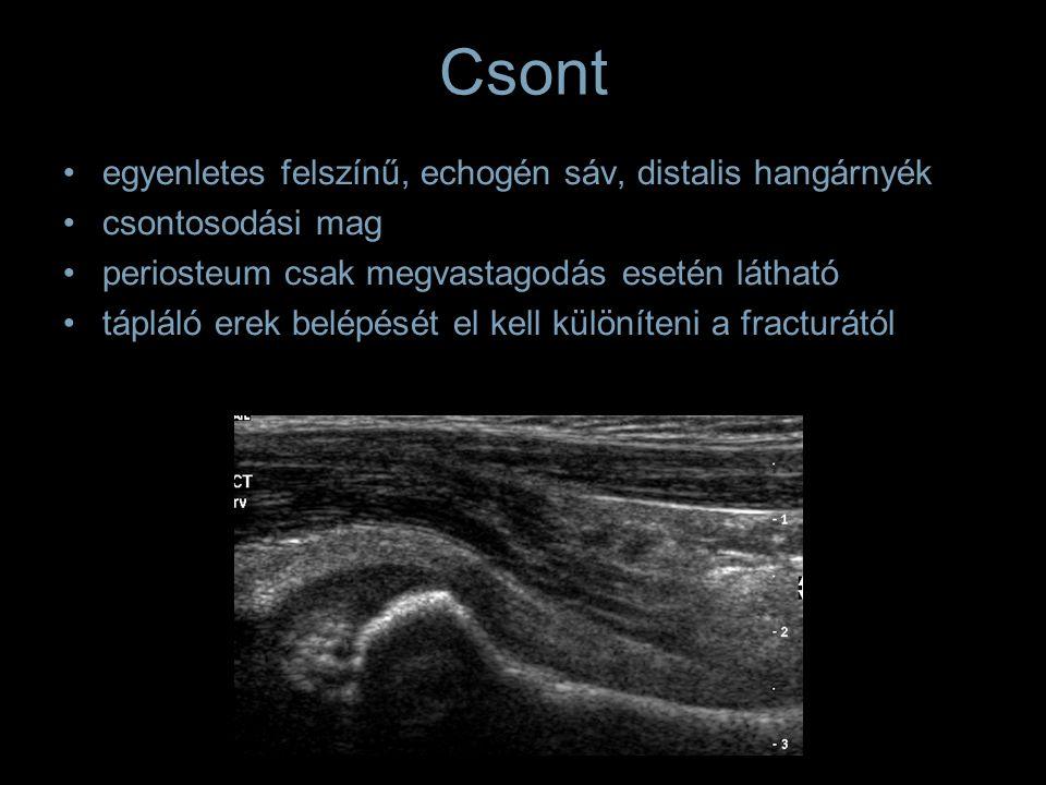 Csont egyenletes felszínű, echogén sáv, distalis hangárnyék csontosodási mag periosteum csak megvastagodás esetén látható tápláló erek belépését el ke