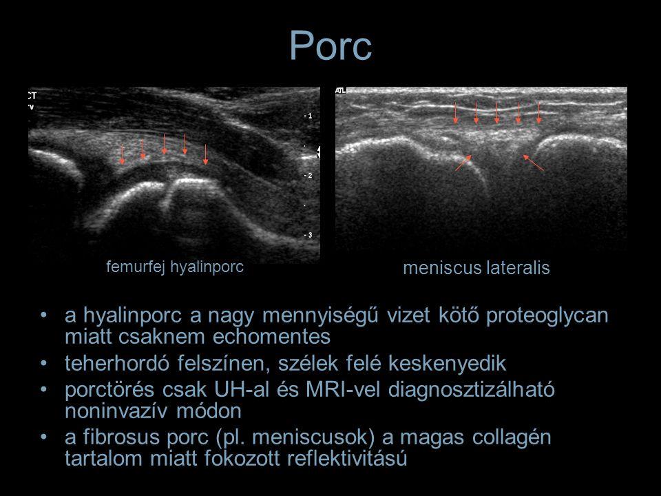 Porc a hyalinporc a nagy mennyiségű vizet kötő proteoglycan miatt csaknem echomentes teherhordó felszínen, szélek felé keskenyedik porctörés csak UH-a