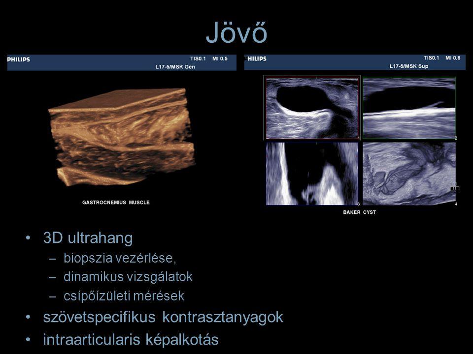 Izomszövet echogenitas változás Gyulladás –Polymyositis –Dermatomyositis Cellularis infiltratio –Lymphoma –Bacterialis infiltratio (pyomyositis) Ödéma Rhabdomyolysis –Sport és elektromos áram okozta sérülés –Focalis nodularis myositis –Metabolicus myopathia –Viralis myositis Traumás denervatio Calcificatio Tumoros infiltratio