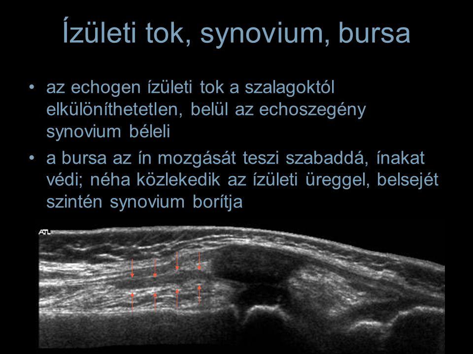 Ízületi tok, synovium, bursa az echogen ízületi tok a szalagoktól elkülöníthetetlen, belül az echoszegény synovium béleli a bursa az ín mozgását teszi