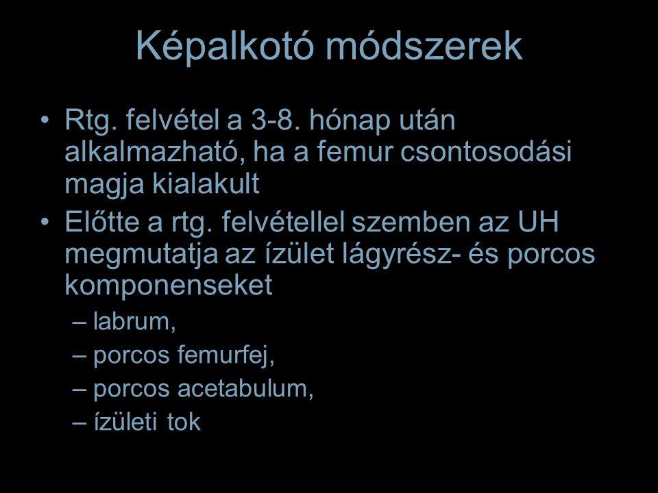 Képalkotó módszerek Rtg. felvétel a 3-8.